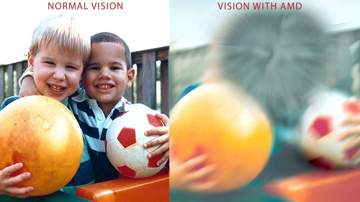 Age-related Macular Degeneration (AMD) – What are the symptoms and treatment options?