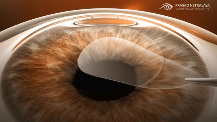 The New Standard For Laser Vision Correction.
