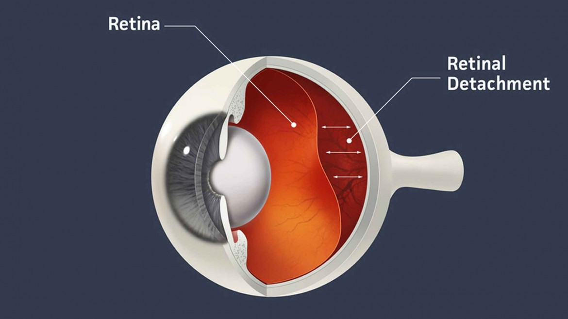 Retinal Detachment: Causes, Symptoms, and Treatments – Explained