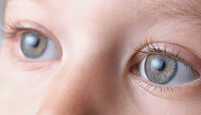 Cataract in children & all you need to know about it!