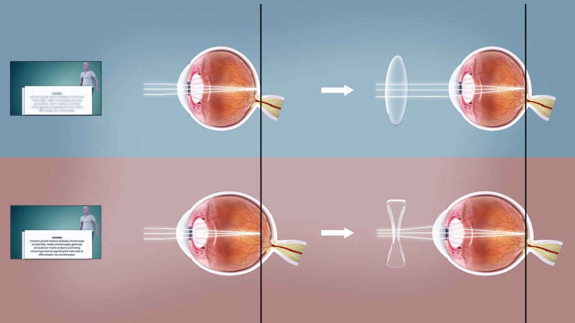 What You Need To Know About Refractive Errors