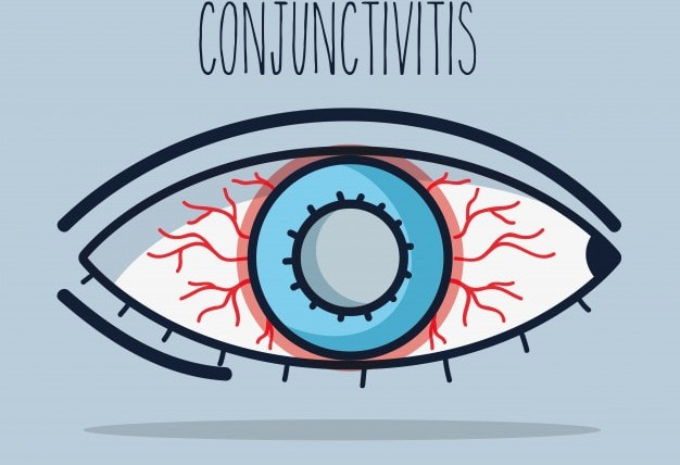 All You Need To Know About Allergic Conjunctivitis Eye Drops