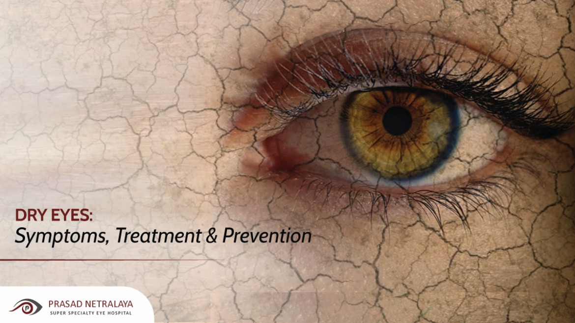 Dry Eyes: Symptoms, Treatment & Prevention