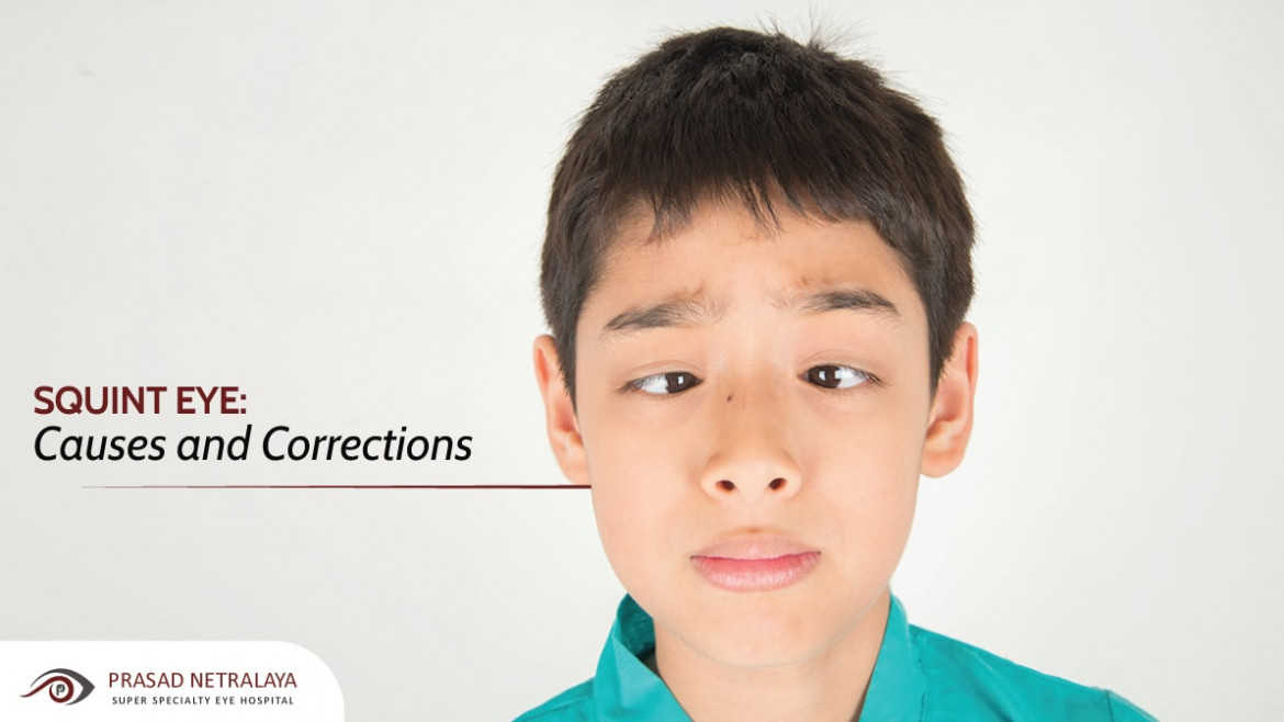 Squint Eye: Causes and Corrections