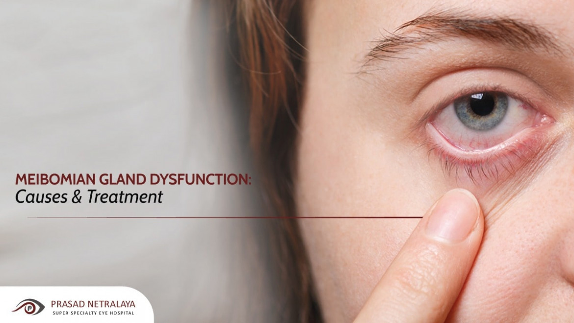 Meibomian Gland Dysfunction: Causes & Treatment
