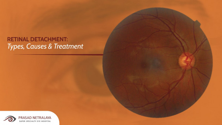 Retinal Detachment: Types, Causes & Treatment