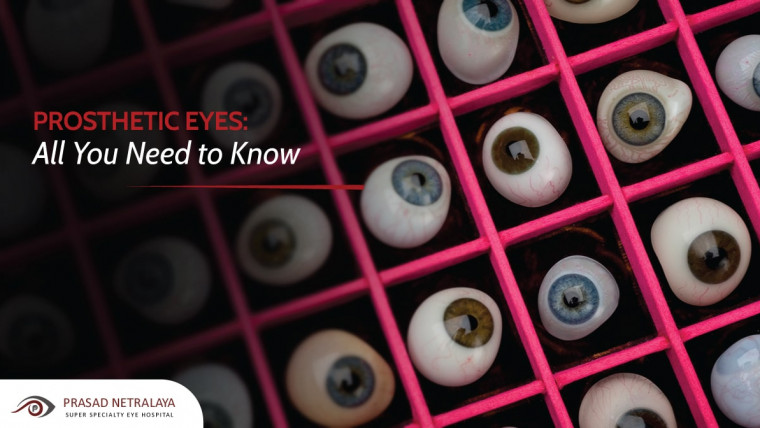 All You Need to Know About a Prosthetic Eye