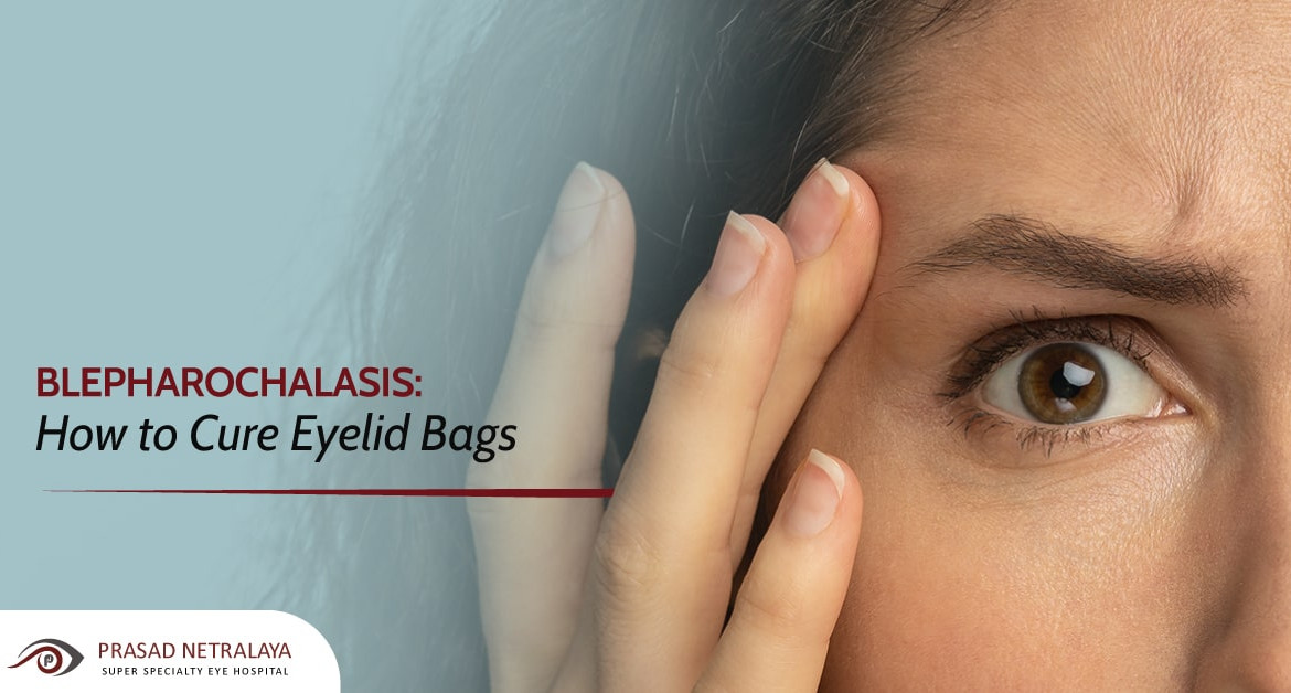 Blepharochalasis: How to Cure Eyelid Bags