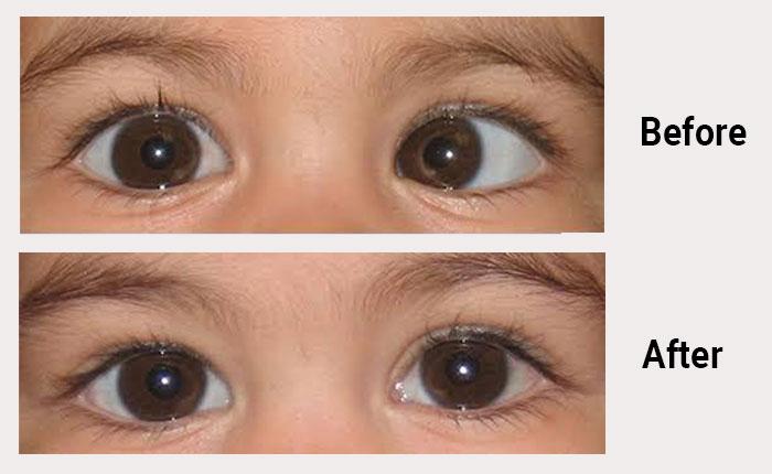 Squint Eye Correction