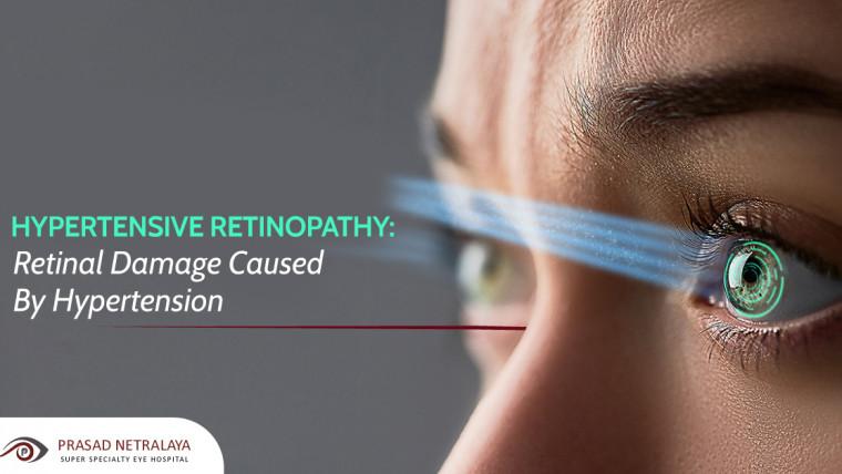 Hypertensive Retinopathy: Retinal Damage Caused by Hypertension