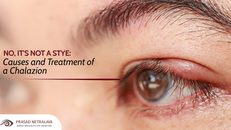No, It's Not a Stye: Causes and Treatment of a Chalazion