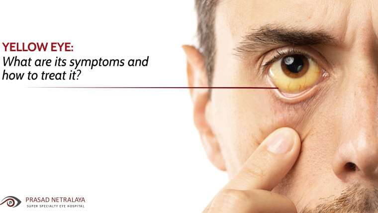Yellow Eye: What Are Its Symptoms and How to Treat It?
