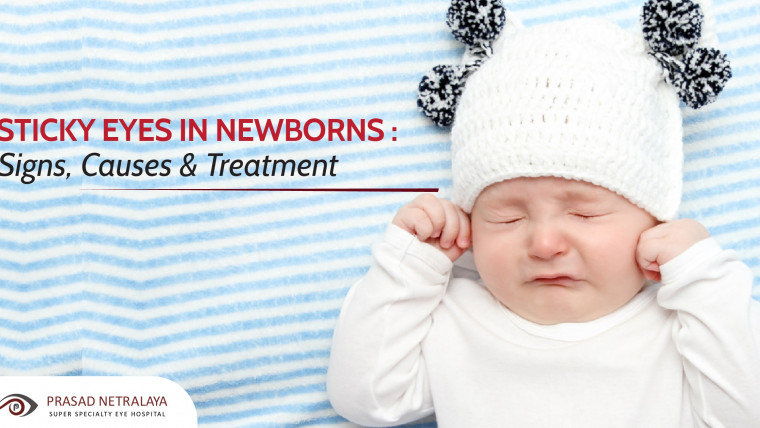 Sticky Eyes in Newborns : Signs, Causes & Treatment