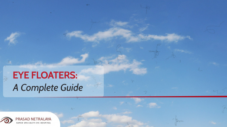 Eye Floaters: A Complete Guide